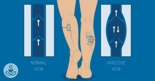 Acupuncture For Circulation In Legs - Acupuncture ...